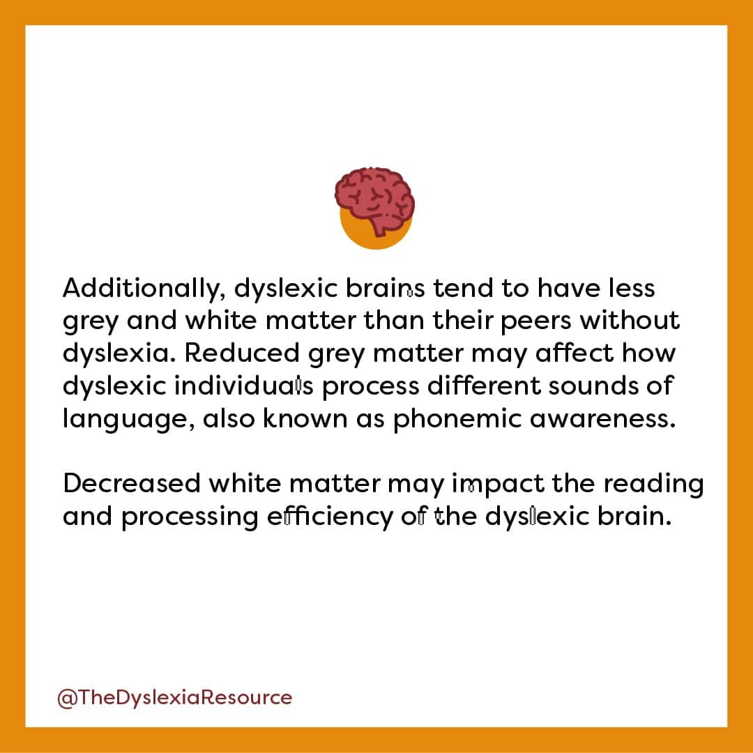 Dyslexic Brain Grey and White Matter